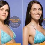 Cirugía estética más demandada: Aumento y moldeado de pecho